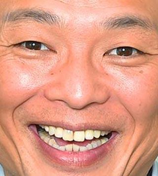 恵俊彰 前歯