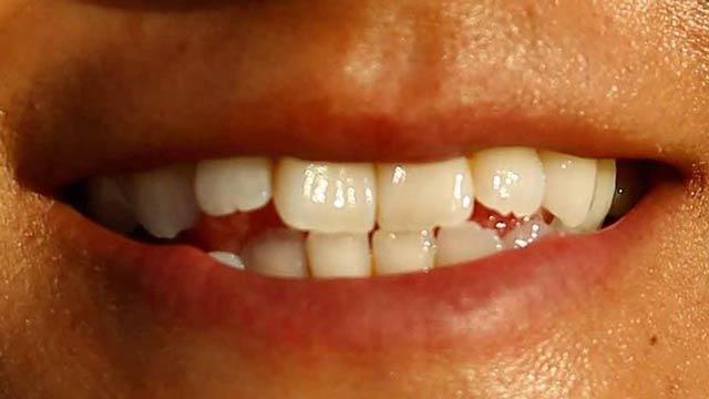 宮里藍 歯並び