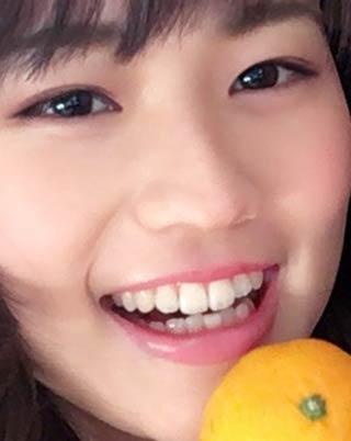 篠原梨菜 歯並び