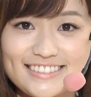 篠原梨菜 歯