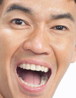 武井壮 歯並び