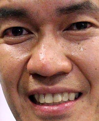 武井壮 歯の写真