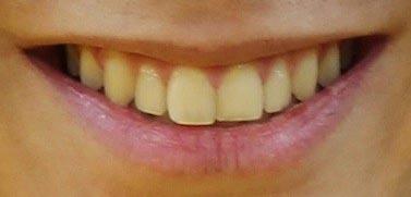 武尊 前歯の写真