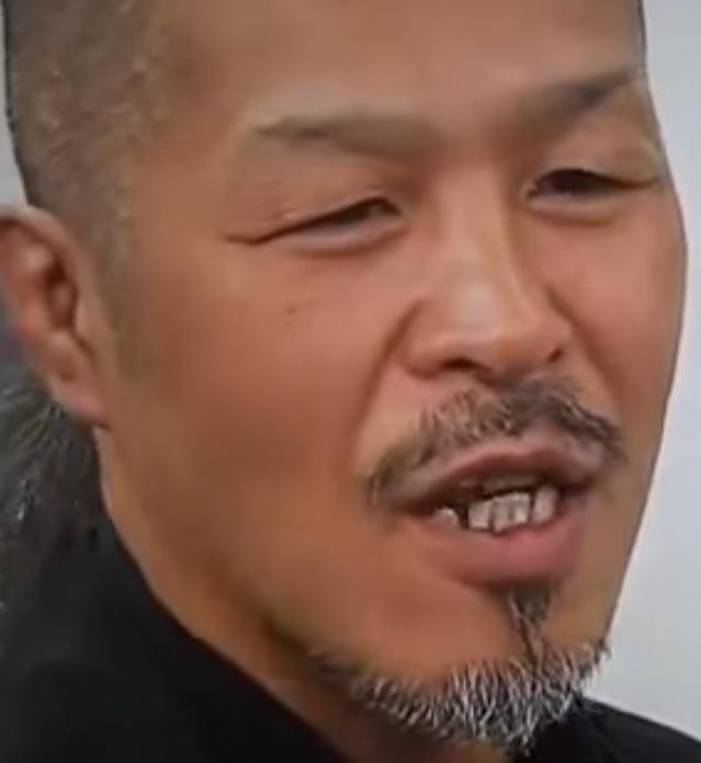 辰吉丈一郎 すきっ歯
