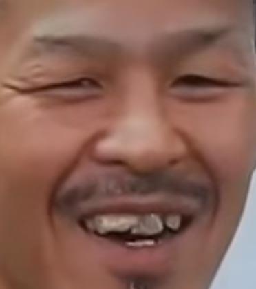 辰吉丈一郎 前歯