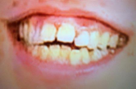 四千頭身 都築 歯