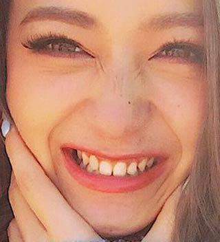 池田美優(みちょぱ) 前歯