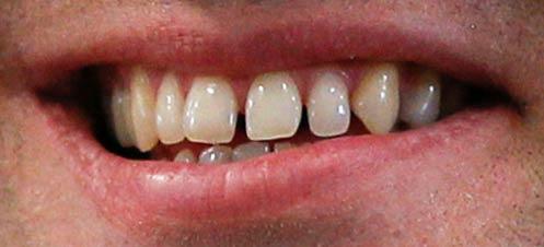 マクロン大統領 歯並び