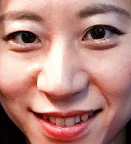 三浦瑠麗 前歯