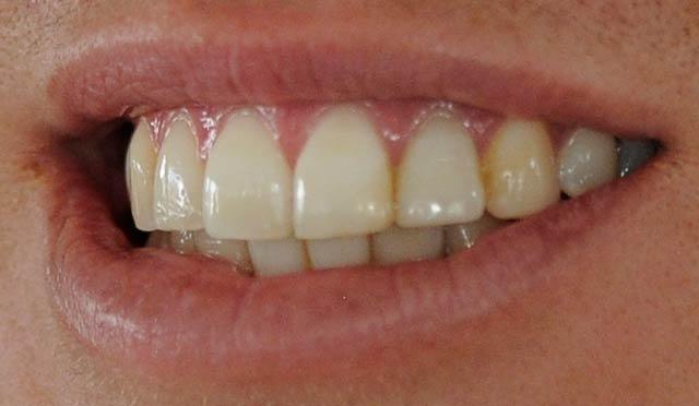 Martina-Hingis teeth