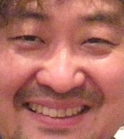 葉加瀬太郎 変色した歯