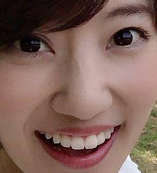 原直子 歯並び