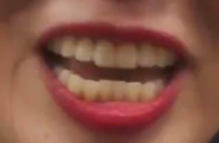 石井てる美 歯並び