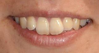 磯崎由加里 前歯の写真