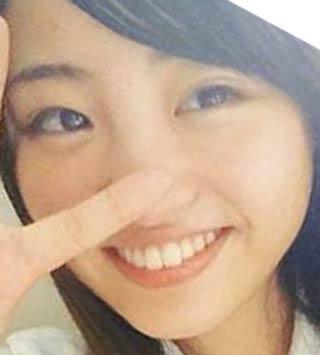 松田美子 前歯