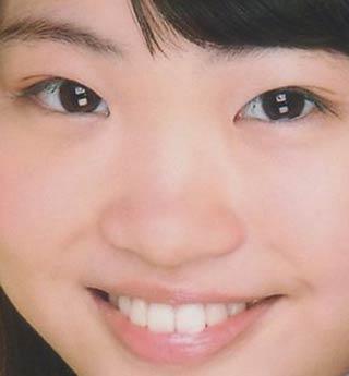 松田美子 歯並び