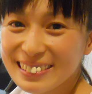松井千夏 前歯