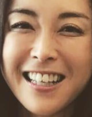 松井美緒 前歯