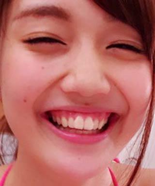 松川菜々花 歯茎