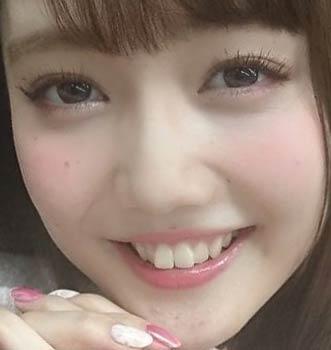 松川菜々花 ビーバー歯
