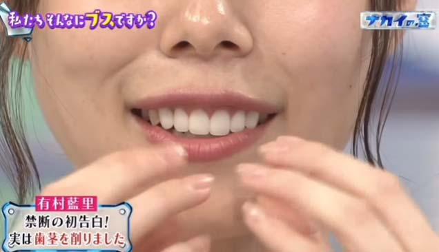 有村藍里 歯茎