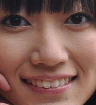 菊地瞳 歯並び