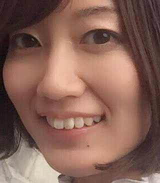 菊地瞳 歯