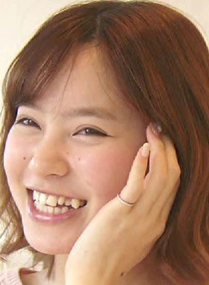 松田栞 八重歯