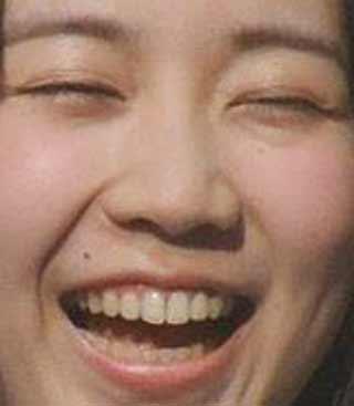 夏川椎菜 歯並び
