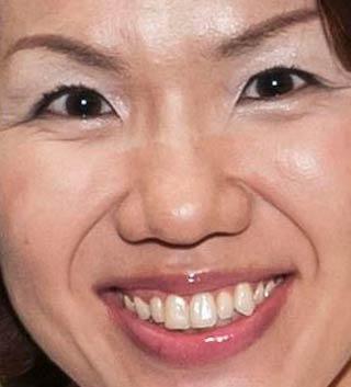 豊田真由子 前歯