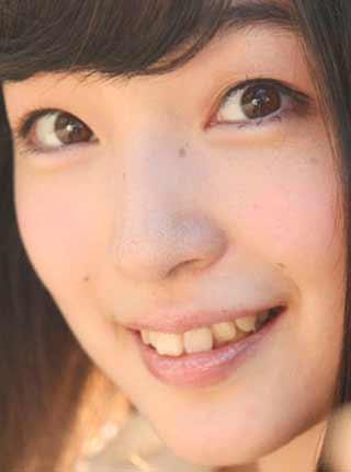 上田麗奈 前歯