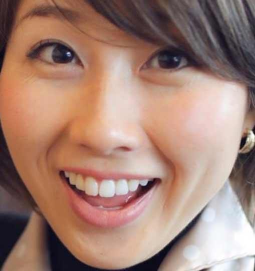 吉田ちか 前歯