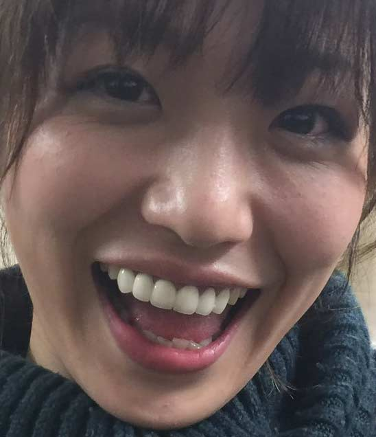 富田麻帆 差し歯