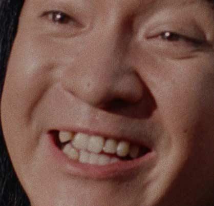 濱田岳 歯並び