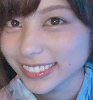 山本萩子 歯