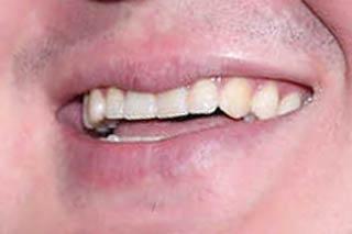 白鵬 歯並び
