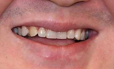 白鵬 前歯