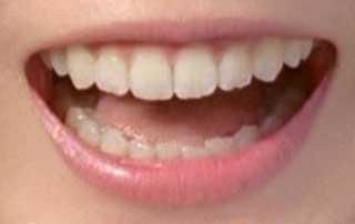 蓮佛美沙子 歯並び