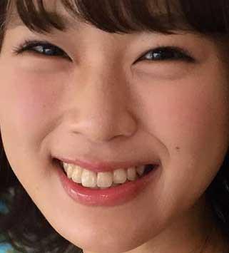渋谷凪咲 前歯