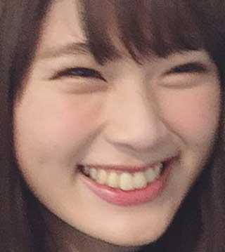 渋谷凪咲 歯