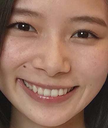 朝日奈央 前歯