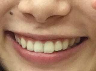 朝日奈央 歯並び