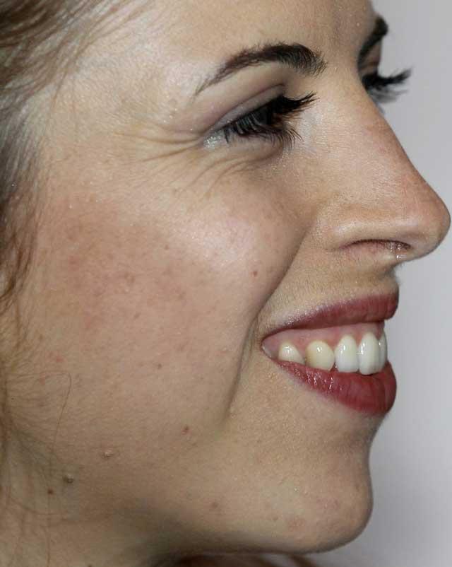 コストナー 歯並び