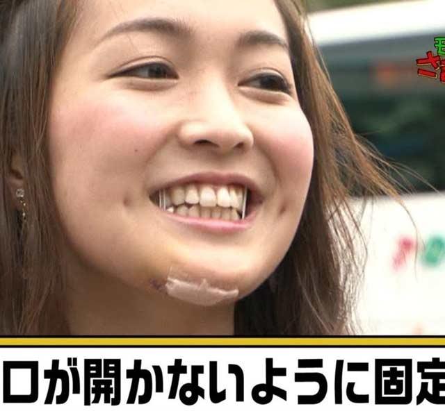 福田典子アナウンサー 前歯
