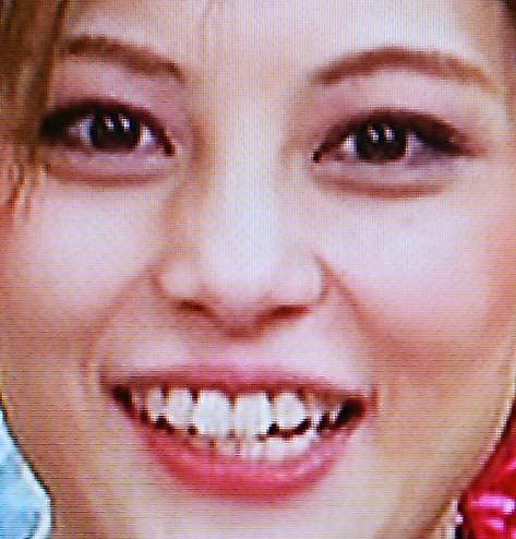 朝美絢 歯並び