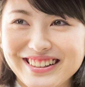 浜辺 美波 矯正 八重歯がない!浜辺美波さんの矯正による歯並びの変化とは??