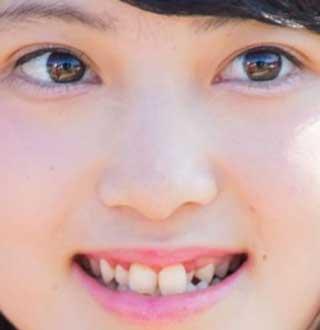 寺田美咲 前歯