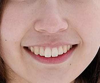 柏木智美 前歯