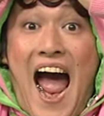 小林顕作 銀歯