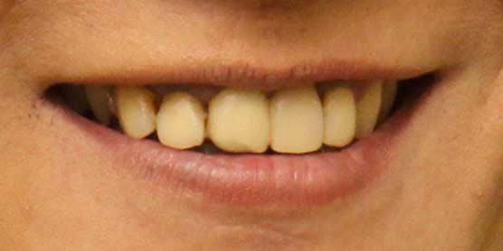 小林顕作 歯